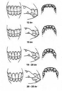 fogak.jpg